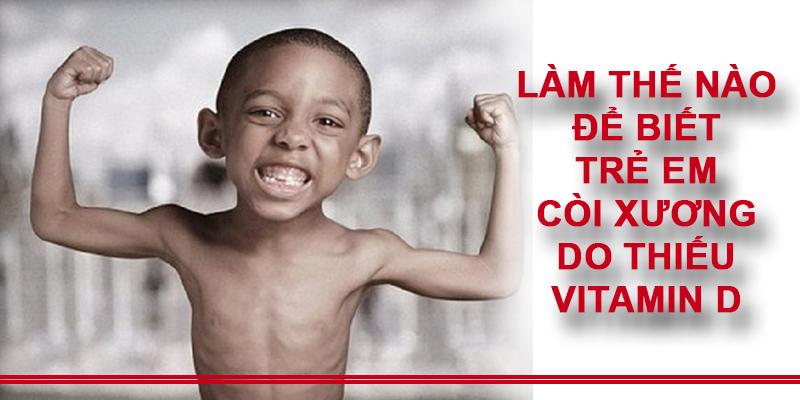 Bệnh còi xương ở trẻ em là do thiếu hụt Vitamin D