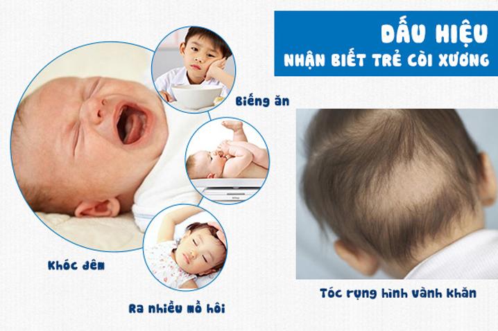 Dấu hiệu nhận biết bệnh còi xương ở trẻ em
