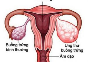 Dấu hiệu ung thư buồng trứng