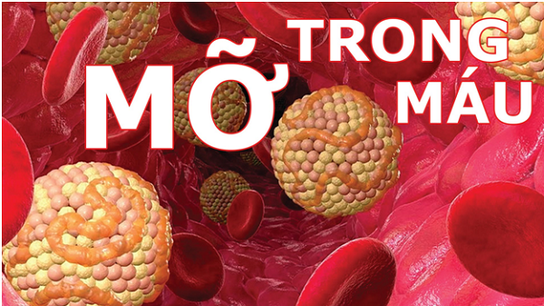 Điều trị bệnh mỡ máu cao mà không cần dùng thuốc