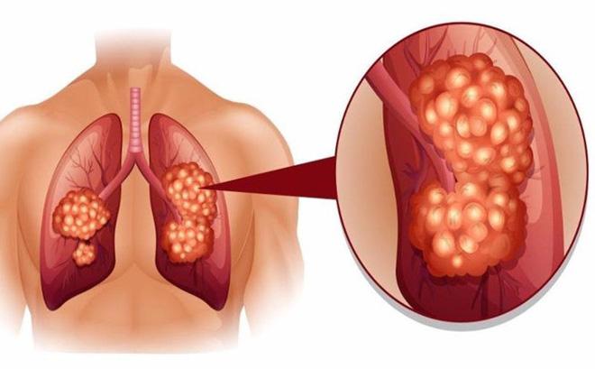 những biến chứng nguy hiểm của bệnh ung thư phổi