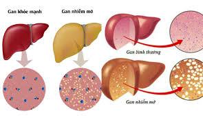 Tác hại của bệnh mỡ máu cao