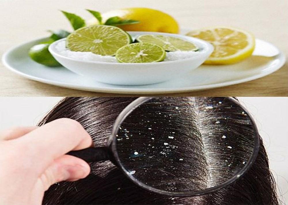 Gội đầu bằng chanh tươi đúng cách ngăn ngừa rụng tóc