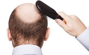 Rụng tóc ở nam giới - nỗi lo của một nửa nhân loại