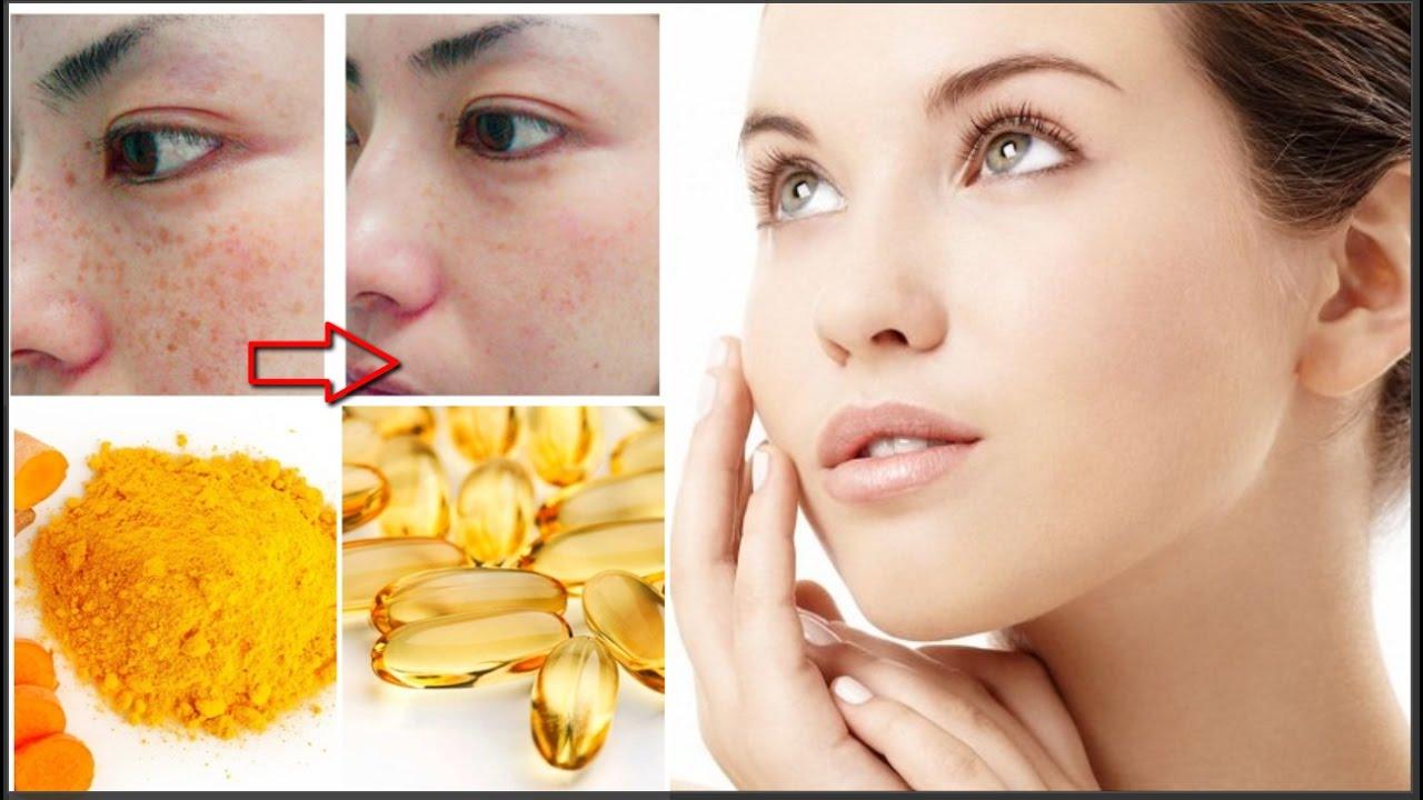Uống bổ xung các loại vitamin giúp làm mờ nám tàn nhang