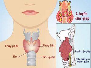 Hình ảnh tuyến giáp của người bình thường