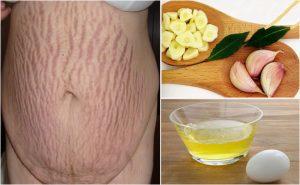 Tỏi chữa rạn da sau sinh hiệu quả