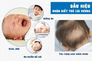 Dấu hiệu của bệnh còi xương ở trẻ em