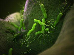 Vi khuẩn HP là nguyên nhân gây ra bệnh ung thư dạ dày
