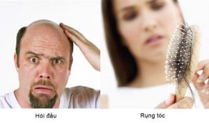 Nguyên nhân gây rụng tóc do mất cân bằng nội tiết tố