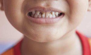 Sún răng ở trẻ là vì sao