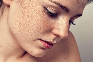 Tàn nhang bẩm sinh là tình trạng tàn nhang xuất hiện do yếu tố di truyền và xuất hiện từ khi còn nhỏ