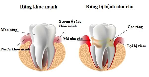Bệnh răng miệng thường gặp ở trẻ: bệnh nha chu