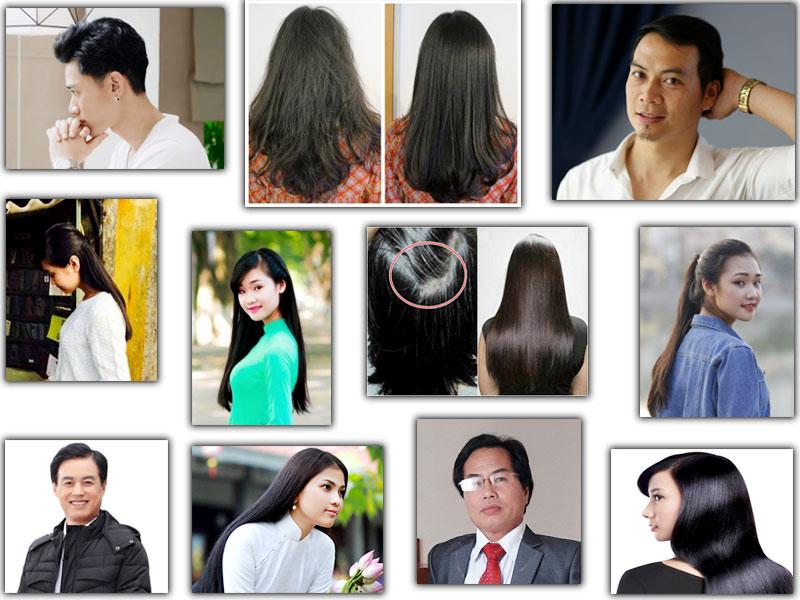 Strong Hair Học Viện Quân Y giải pháp chăm sóc tóc toàn diện nhất cho bạn