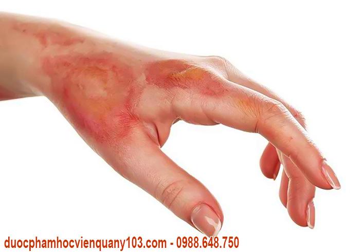 thuốc chữa bỏng maduxin biến chứng bỏng